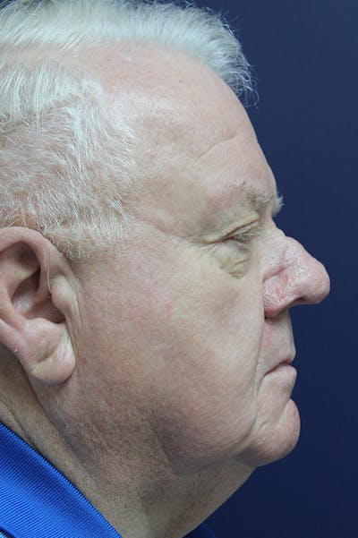 Rhinophyma Surgery Gallery - Patient 60806982 - Image 6