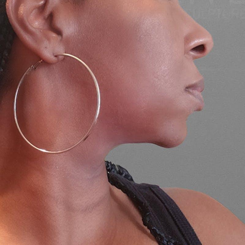 before AirSculpt chin liposuction