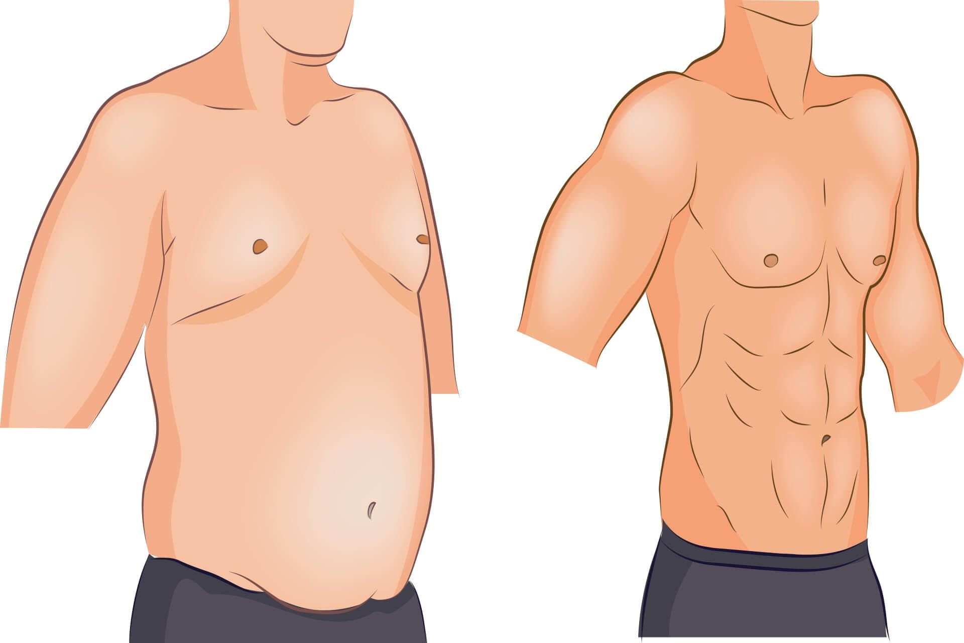 Gynecomastia Severity