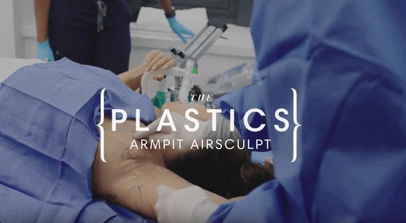 plastics armpit airsculpt