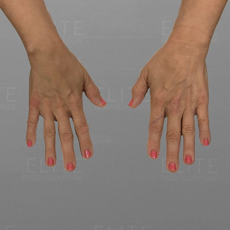Hand Rejuvenation Before