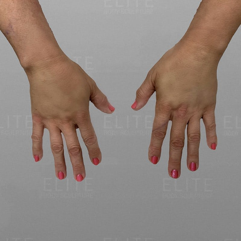 Hand Rejuvenation After