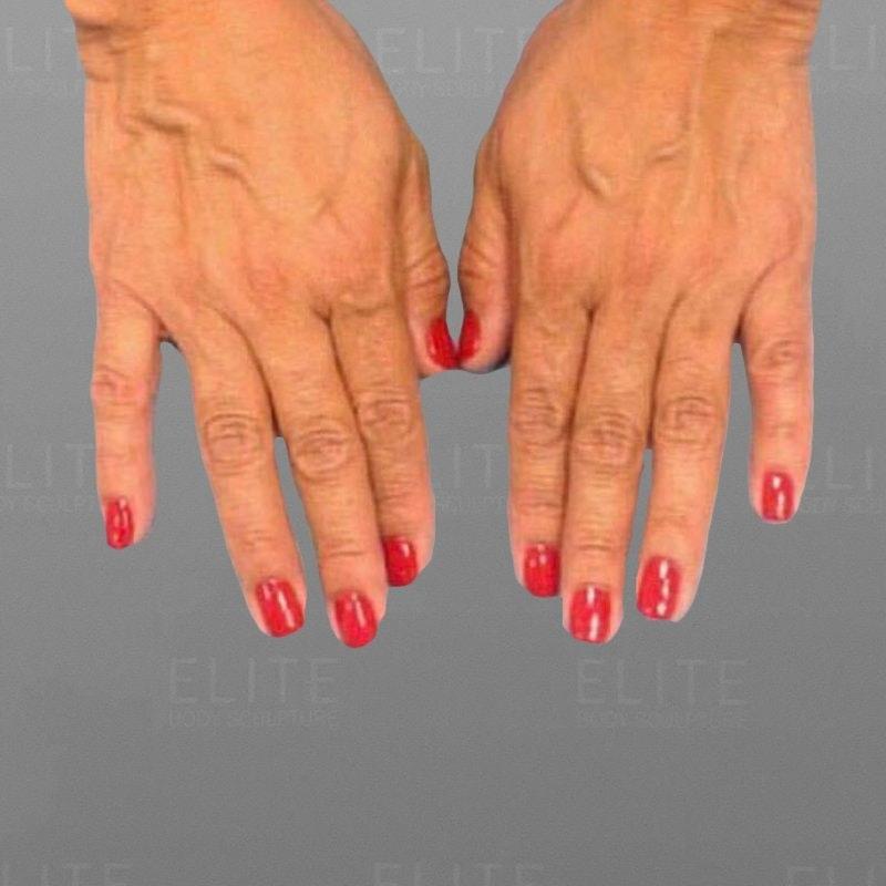 Hand Rejuvenation Before 2