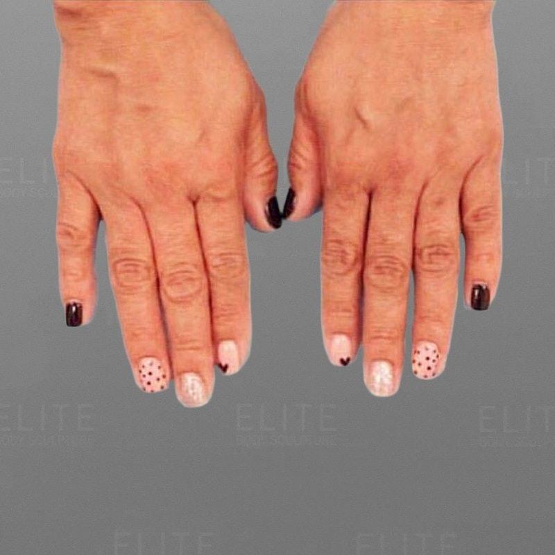 Hand Rejuvenation After 2