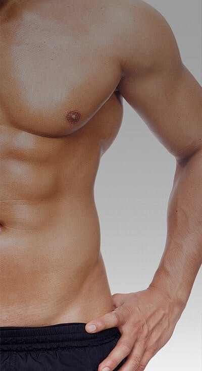 Abs without lipo