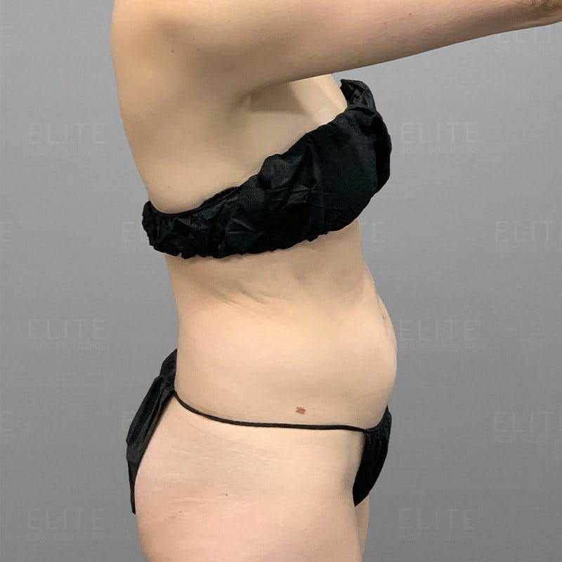 Lower Stomach Liposuction Before