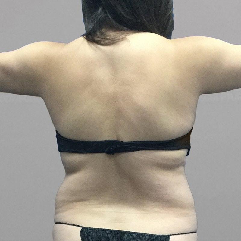 Upper Back Procedure Before