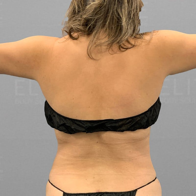 Upper Back Procedure After