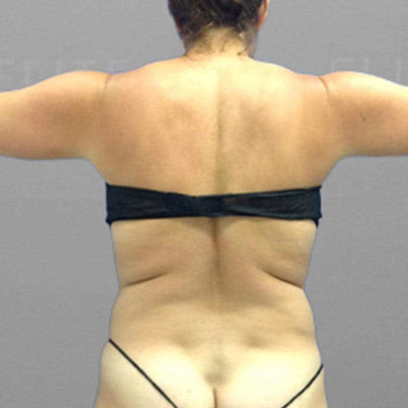Upper Back Procedure Before 2