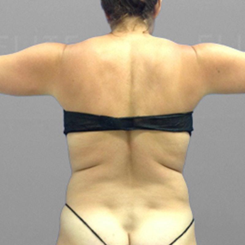 Upper Back Procedure Before 2