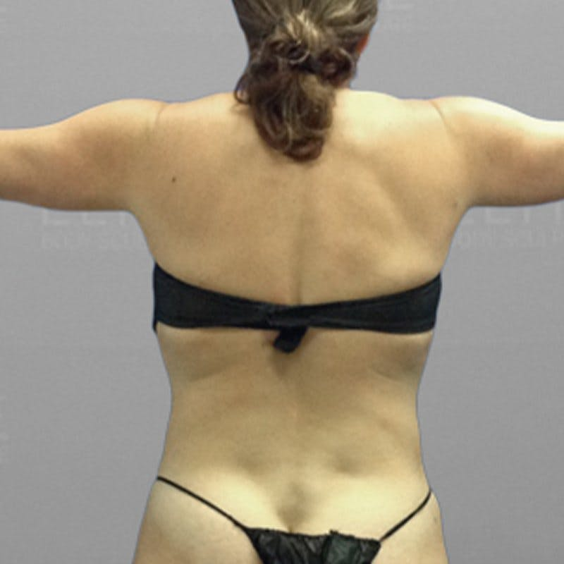 Upper Back Procedure After 2