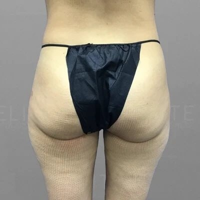 Thigh Lipedema Treatement Before 3