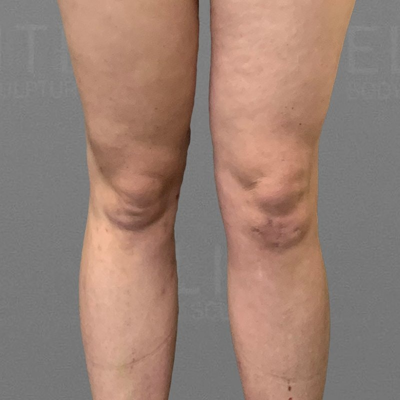 Knee Fat Removal After