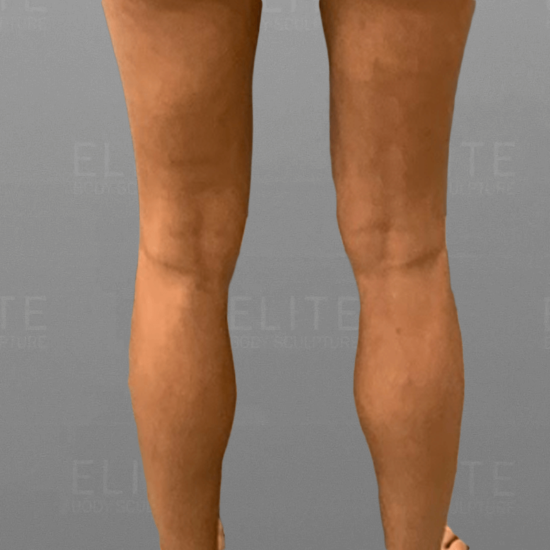 Cankle Fat Removal After