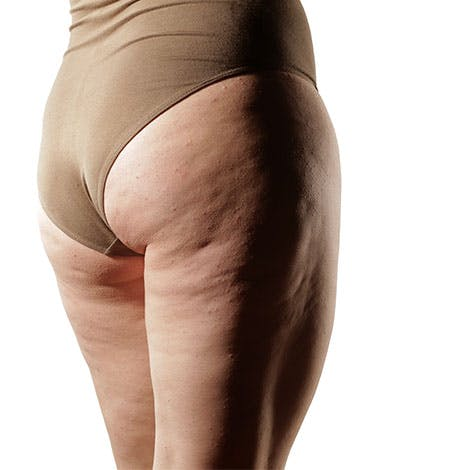 Smooth Away Liposuction Mistakes