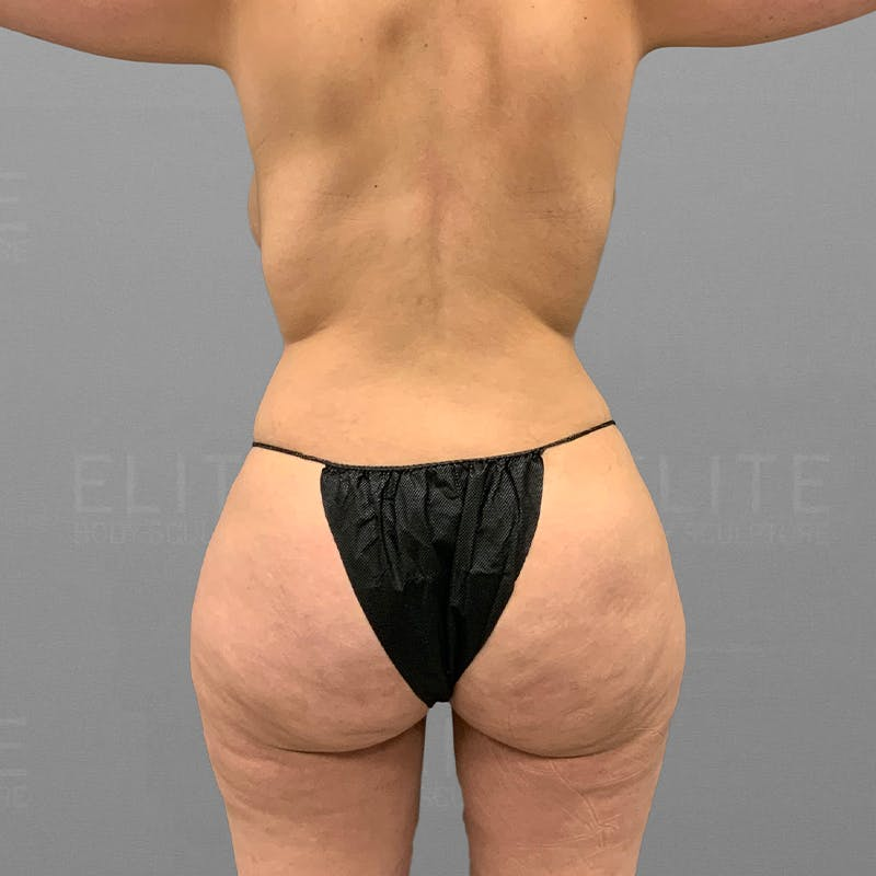 Liposcution Revision After