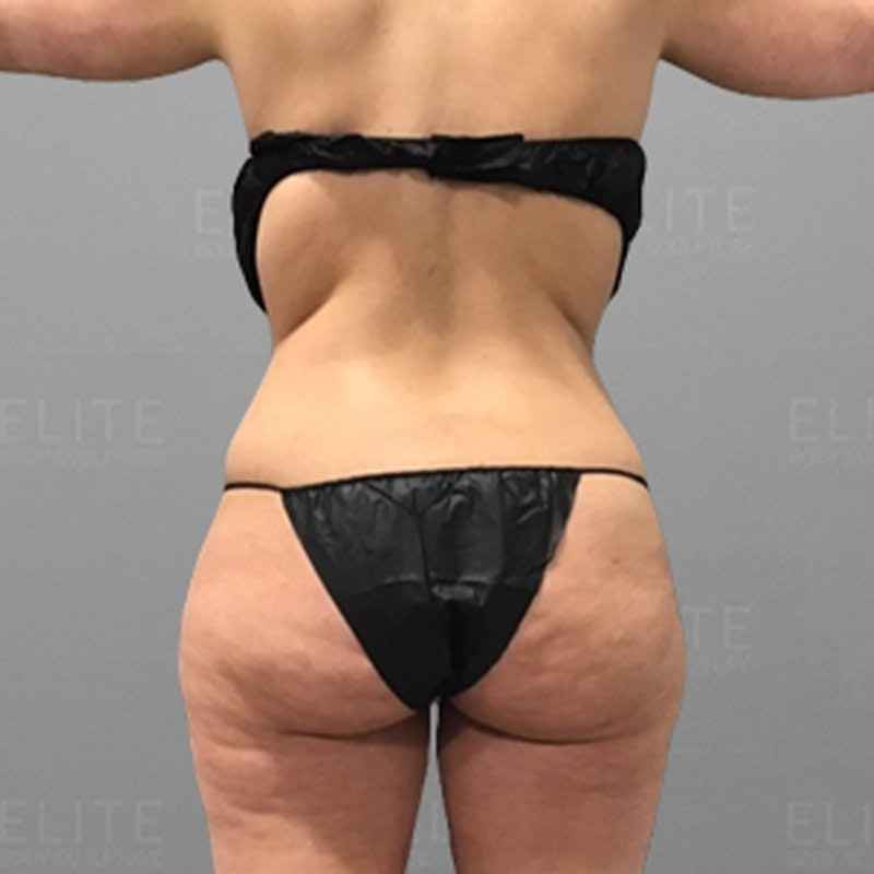 Liposcution Revision Before