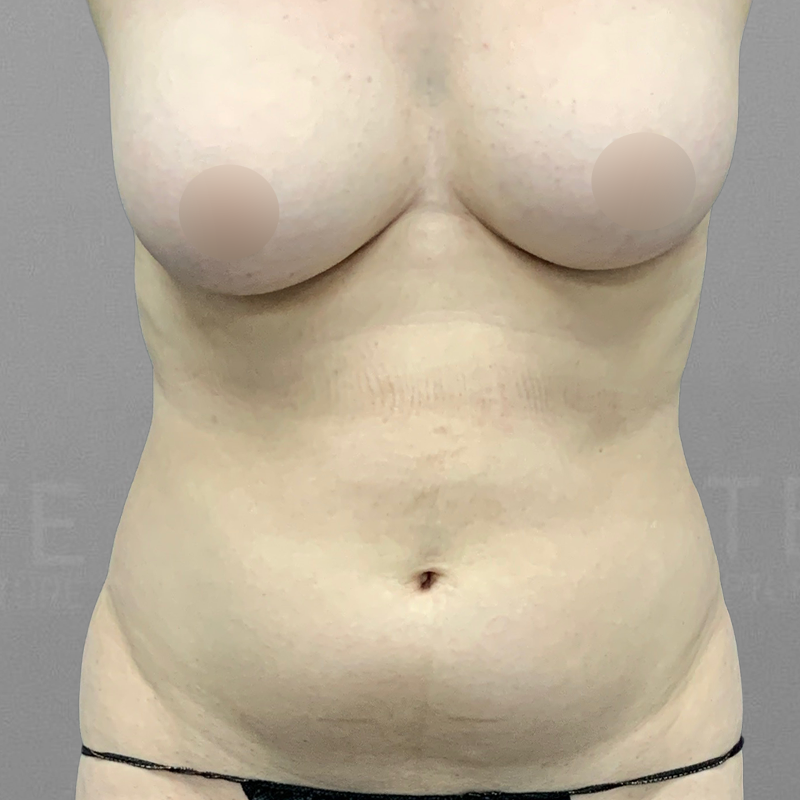 Front Bra Roll AirSculpt Before 2