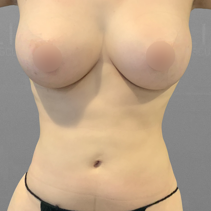 Front Bra Roll AirSculpt After 2
