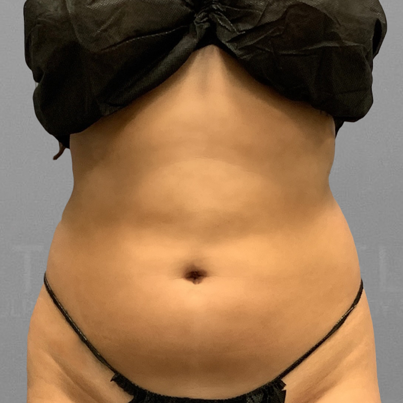 Front Bra Roll AirSculpt Before