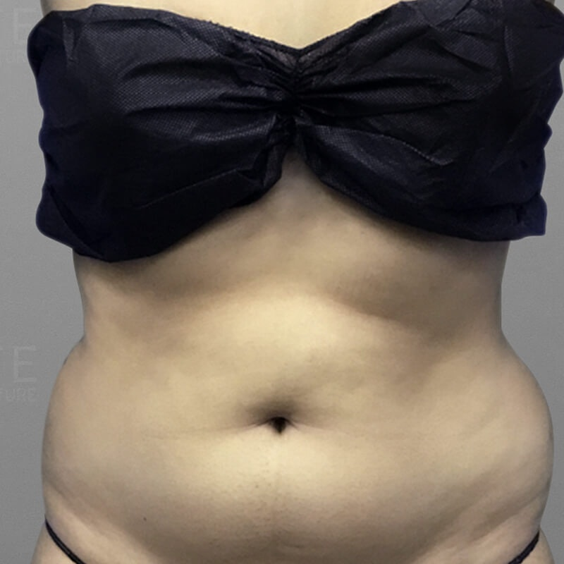 Stomach Sculpting Before