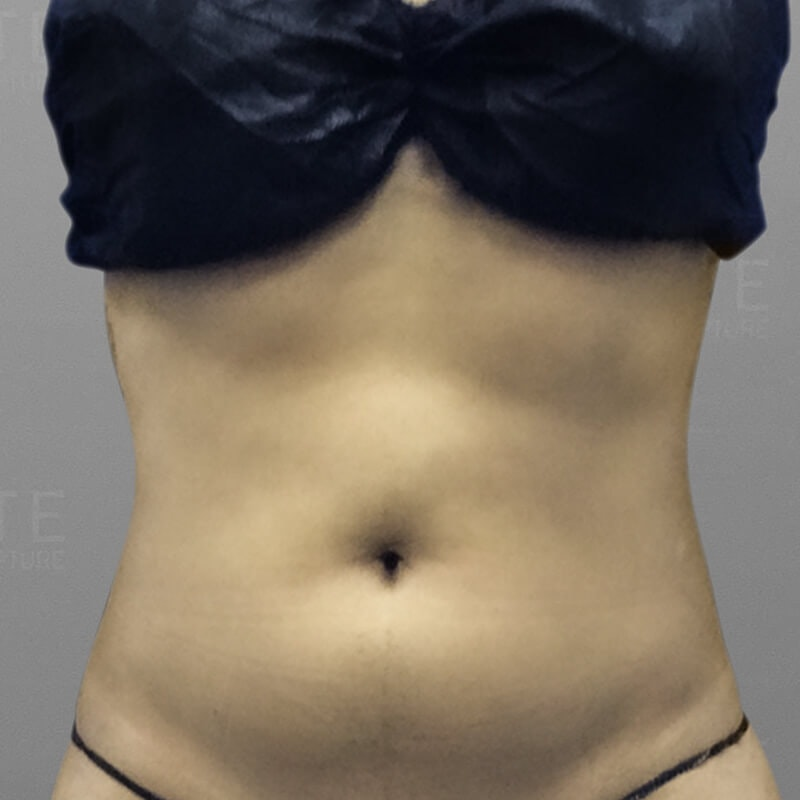 Stomach Sculpting After