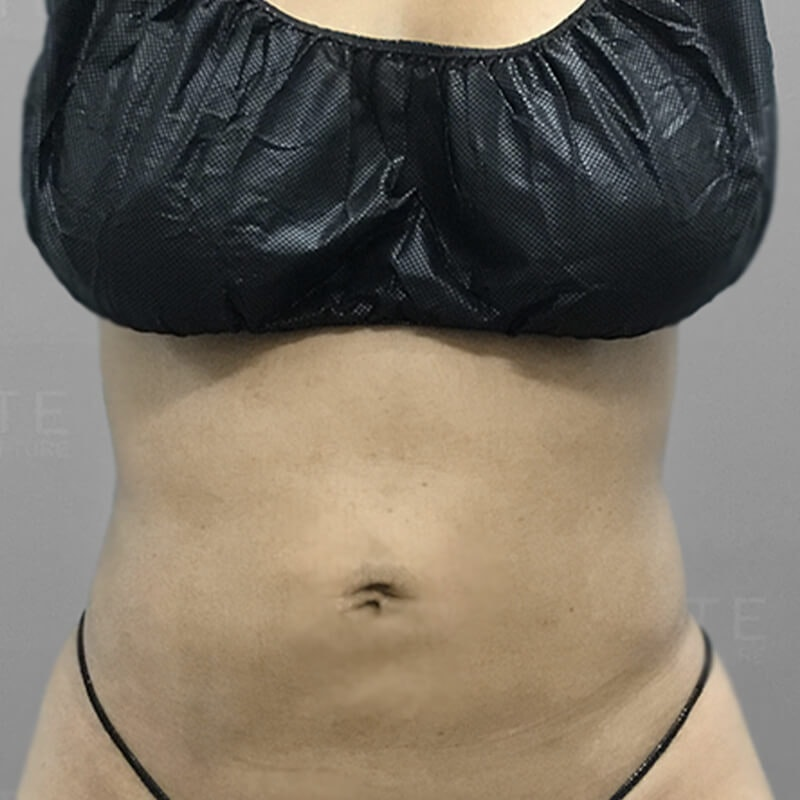 Stomach Sculpting After 2