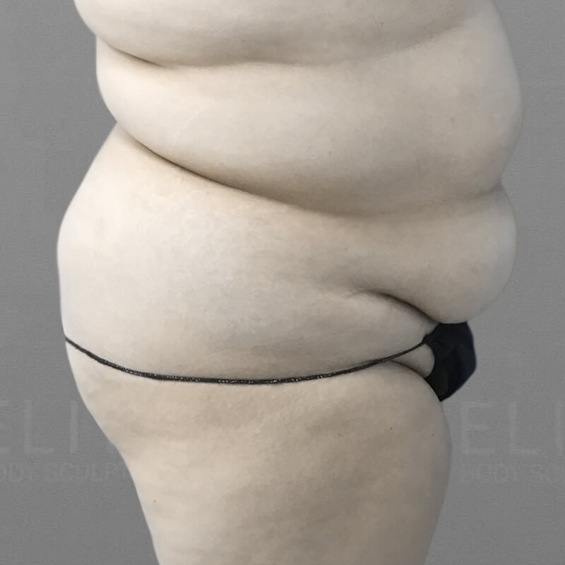 Stomach Sculpting Before 3