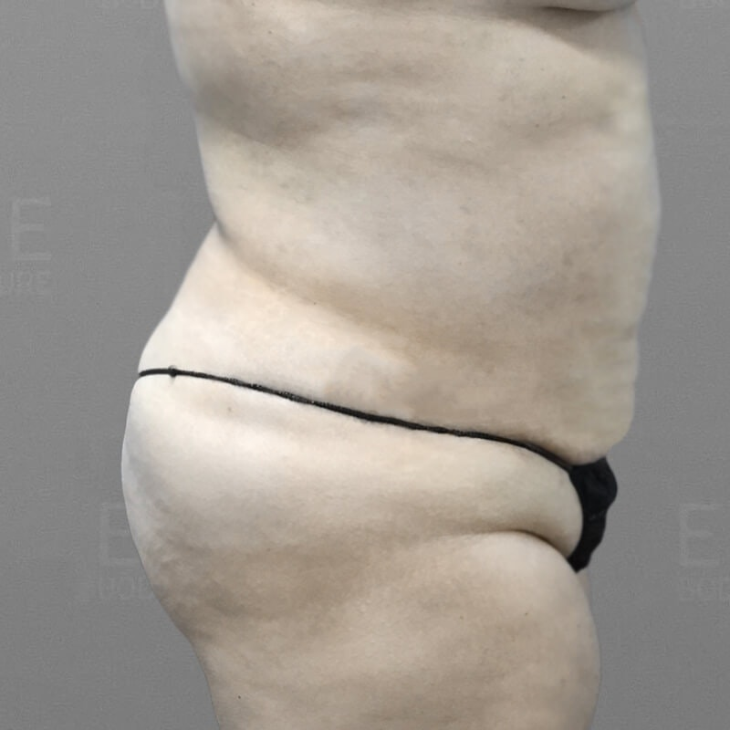 Stomach Sculpting After 3