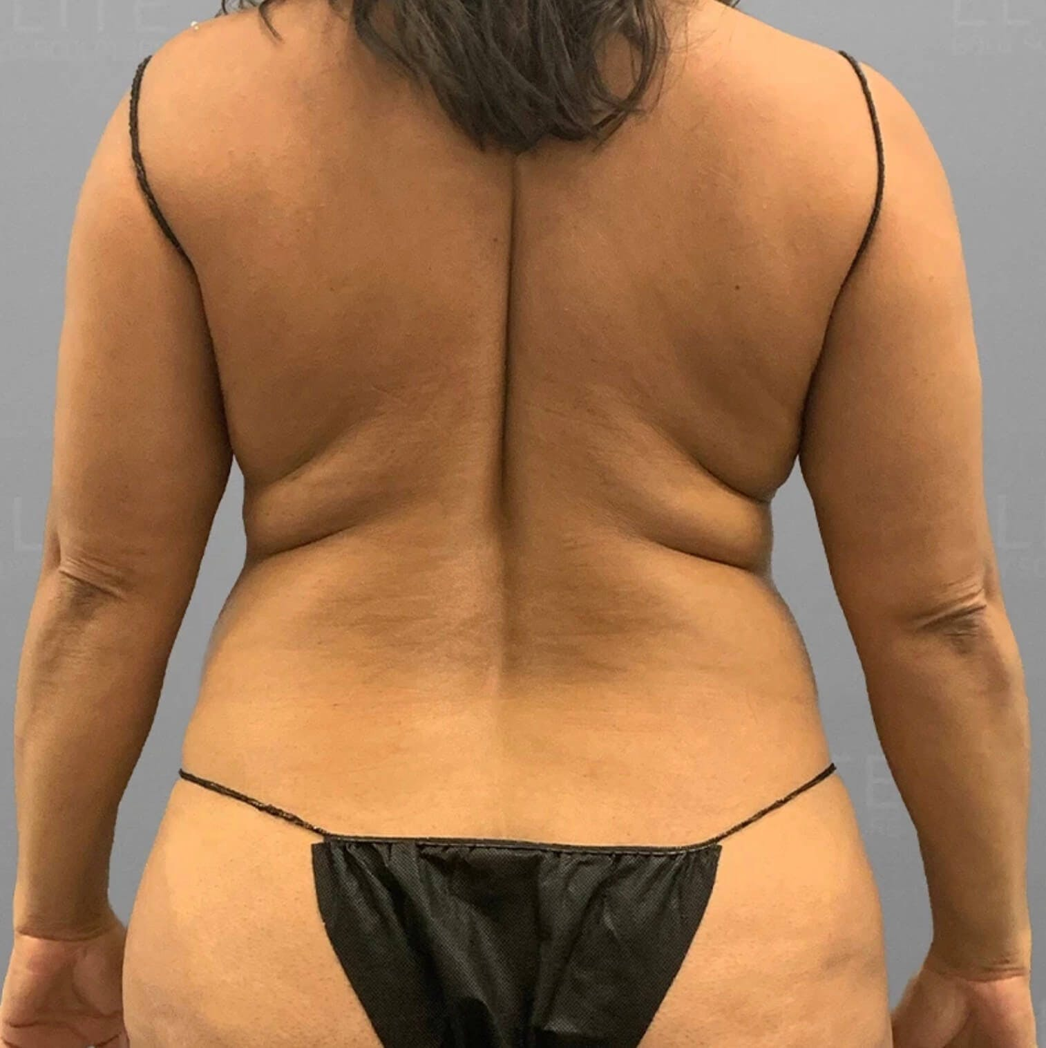 Back AirSculpt Before