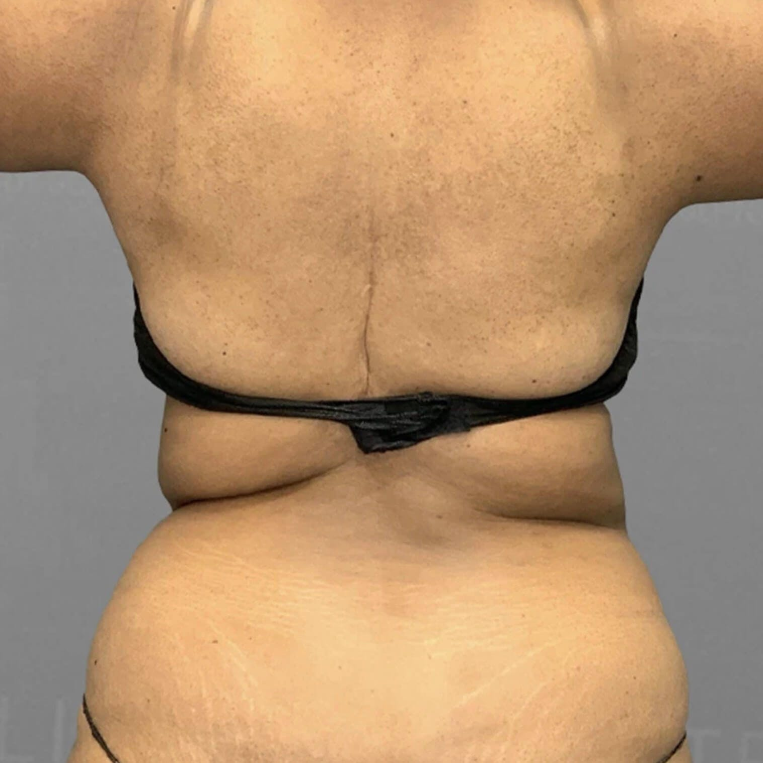 Back AirSculpt Before 2