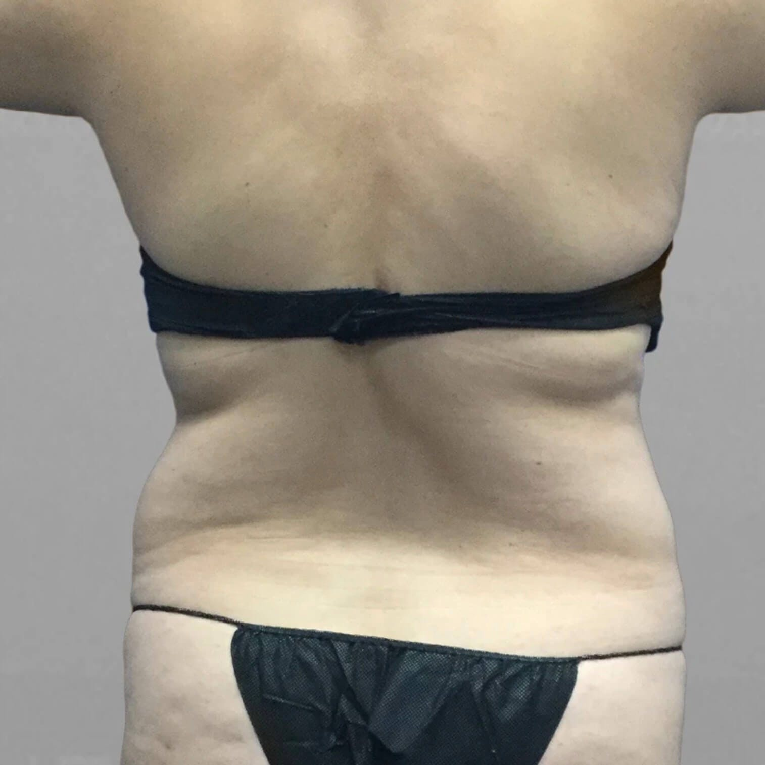 Back AirSculpt Before 3