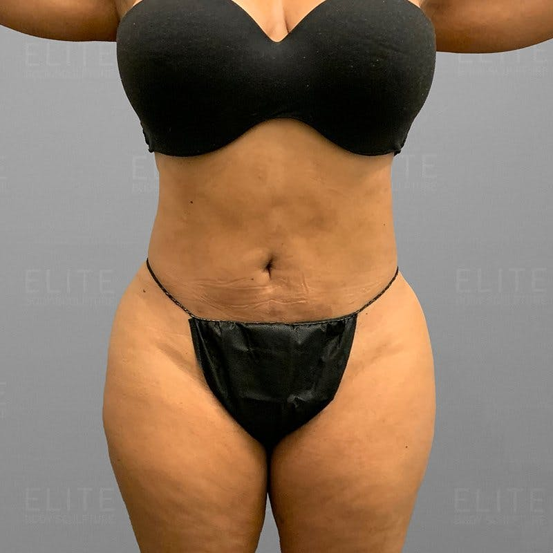 Pubic AirSculpt After