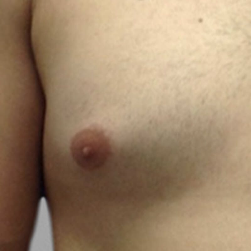 Gynecomastia Before 2