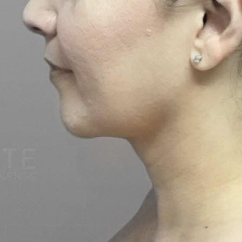 Chin AirSculpt After 2