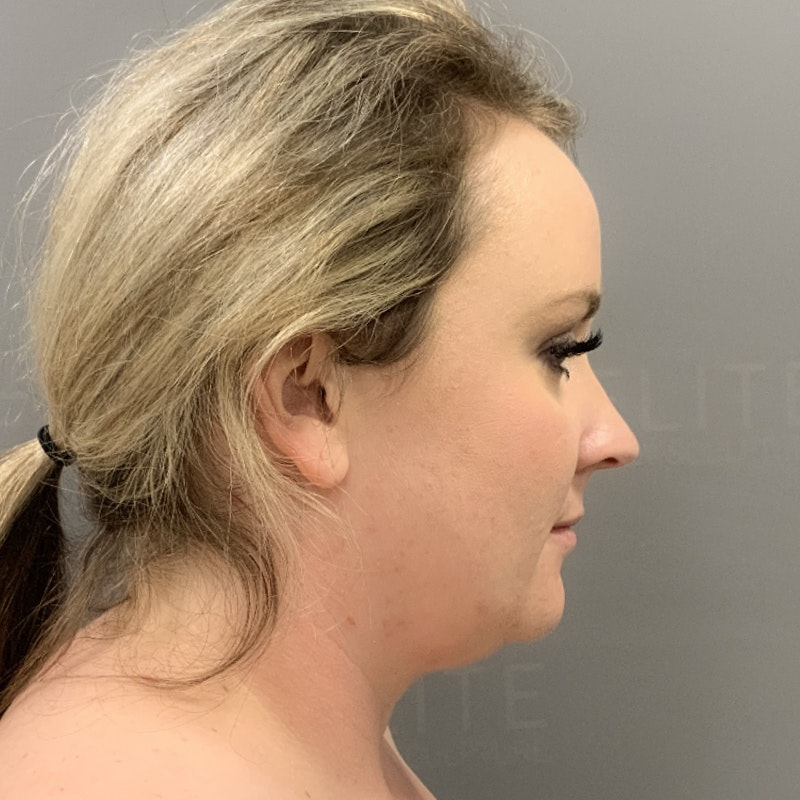 Chin Fat Removal Before