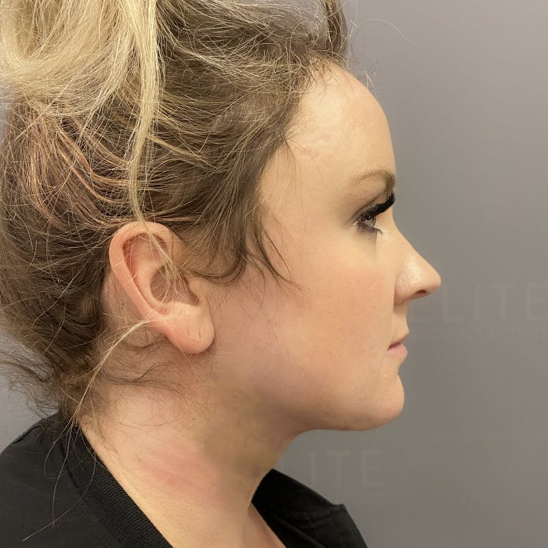 Chin Fat Removal After
