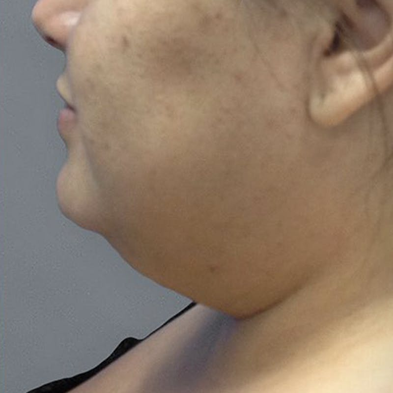 Chin Fat Removal Before 2