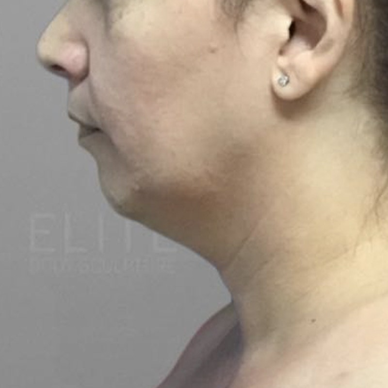 Chin Fat Removal Before 3