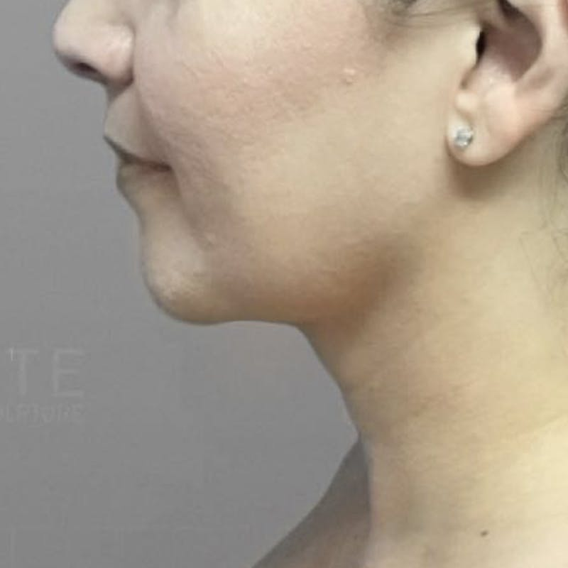 Chin Fat Removal After 3