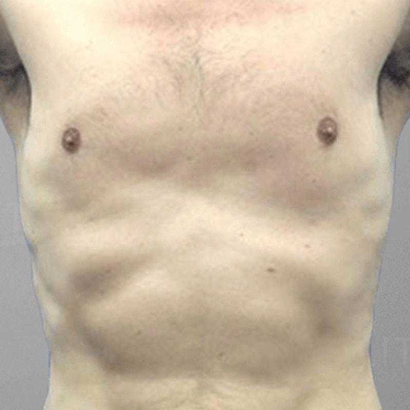 Gynecostmastia After