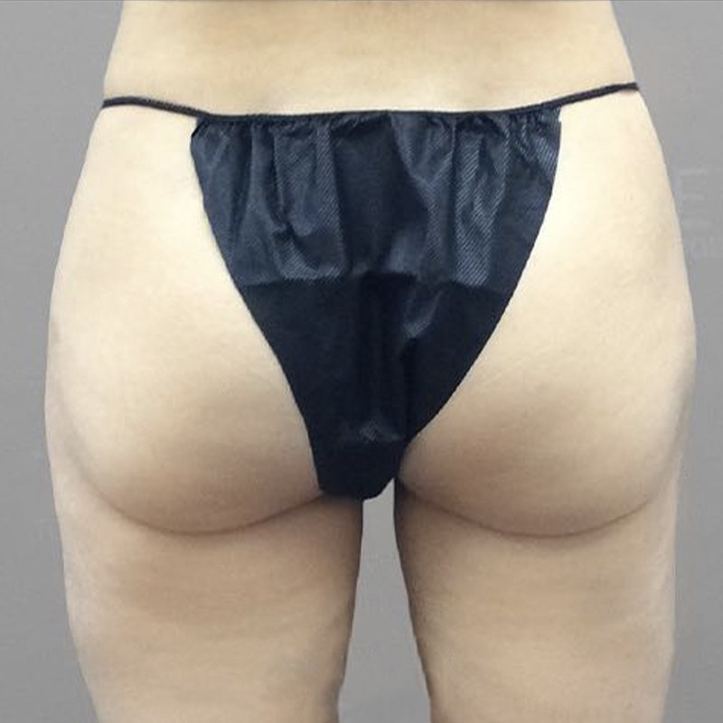 Thigh Fat Removal After