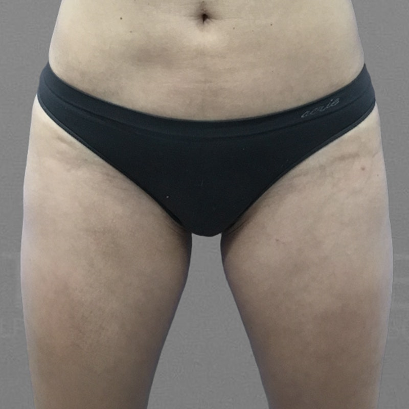 Thigh Fat Removal After 3