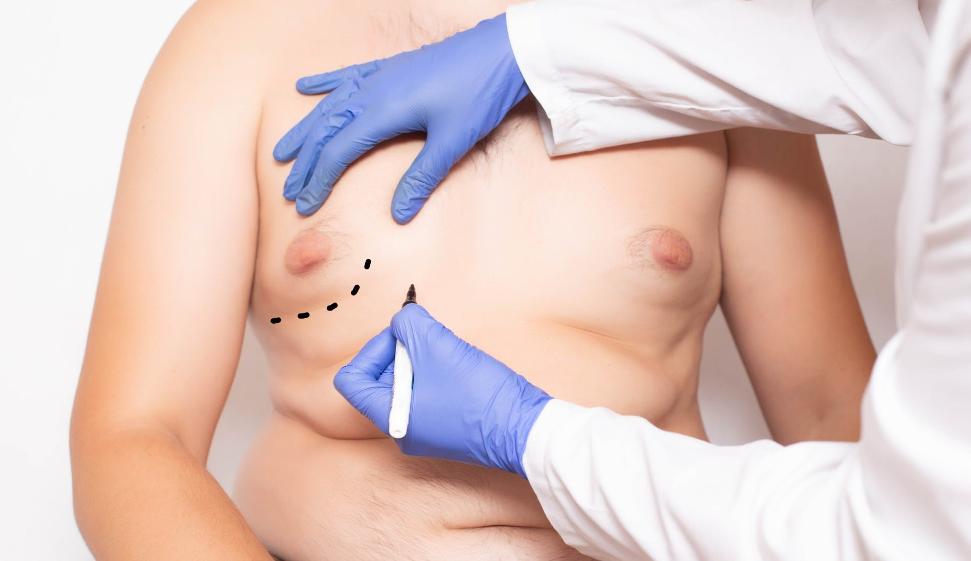 Doctor marking pacient body
