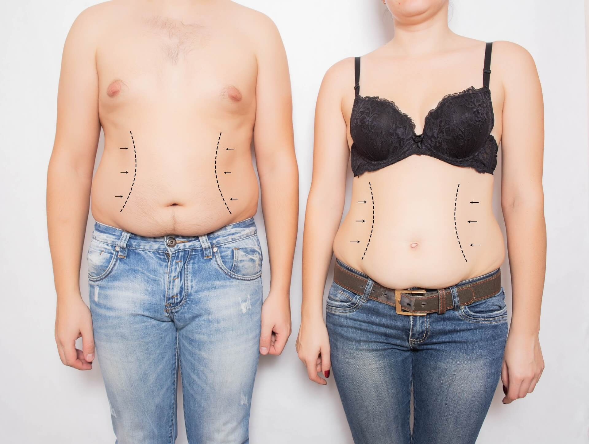 Man and woman side to side with stomach marked
