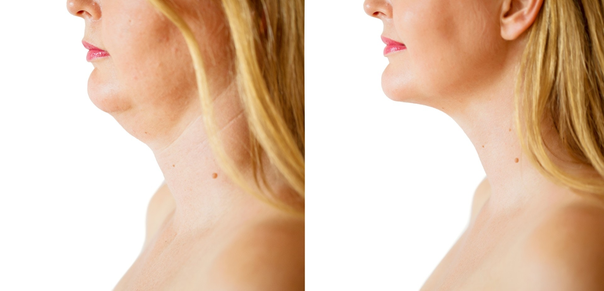 Woman before and after double chin removal