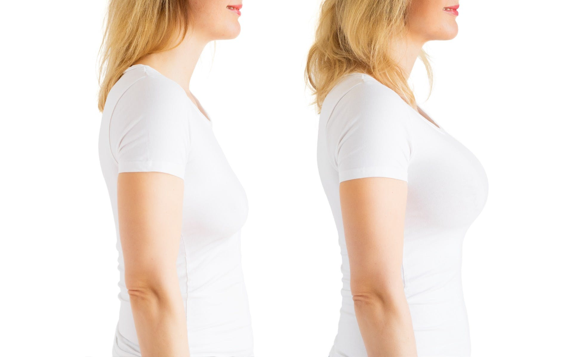 Woman before and after breast augmentation