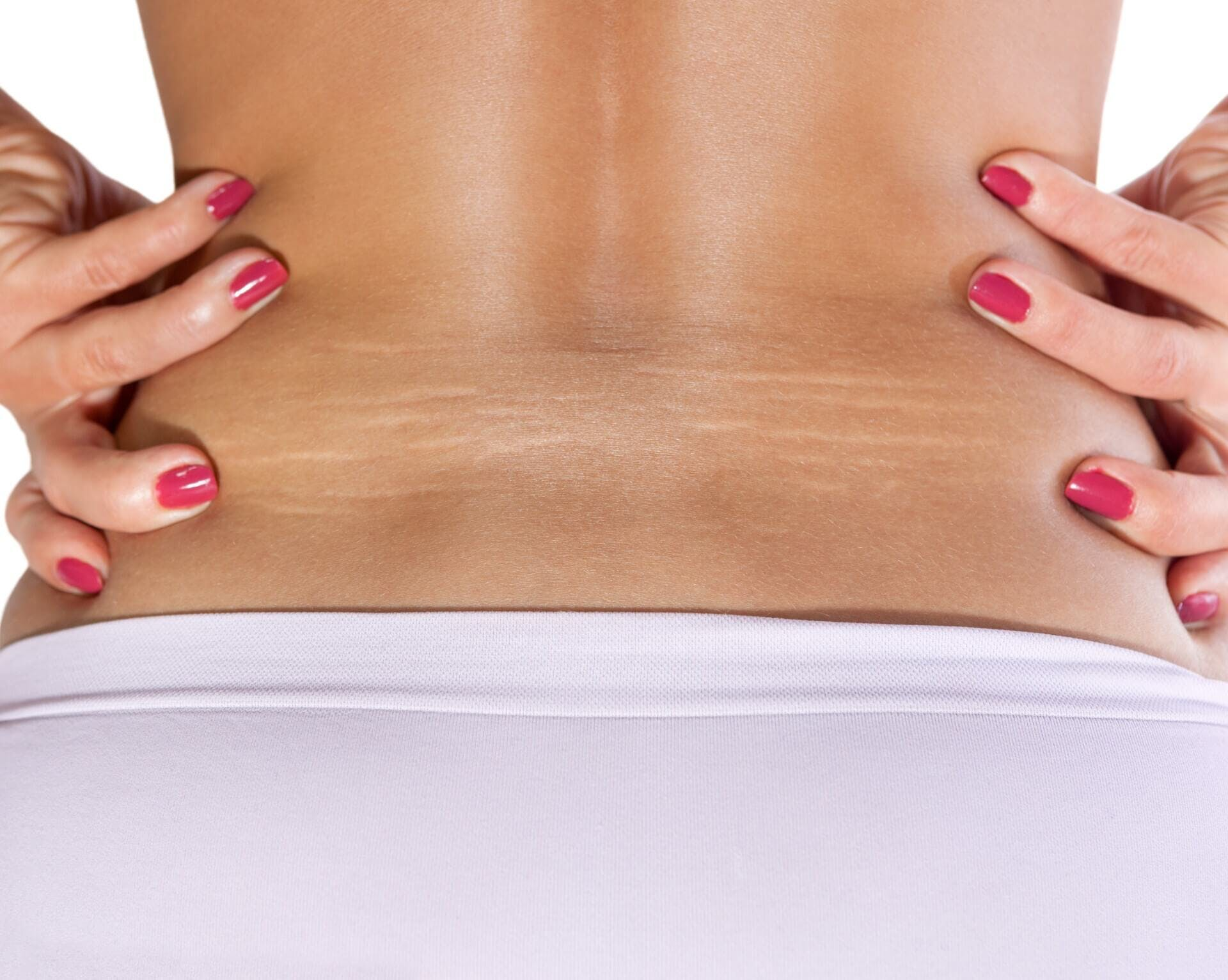 What You Should Know About Lower Back Liposuction in Atlanta