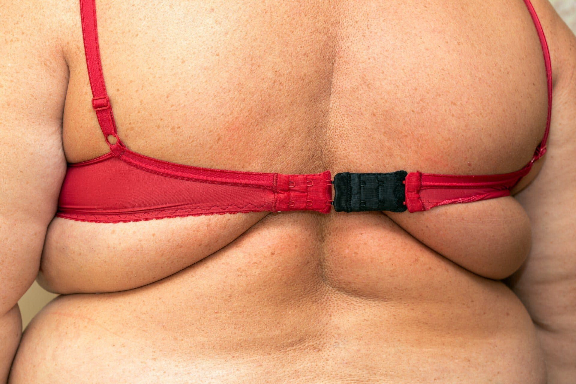 Looking to Target Back Fat With Liposuction, Denver? Read the AirSculpt Take