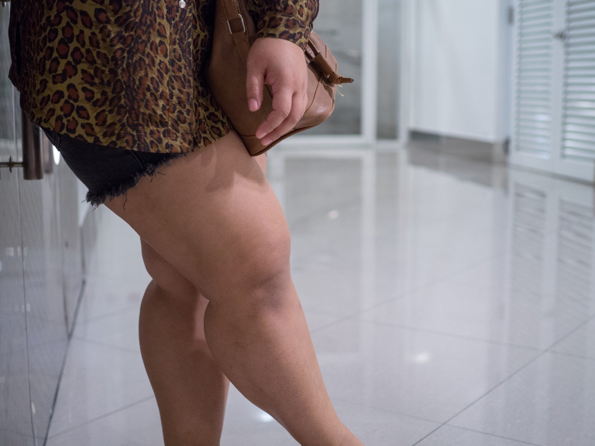 Outer Thigh Fat Form